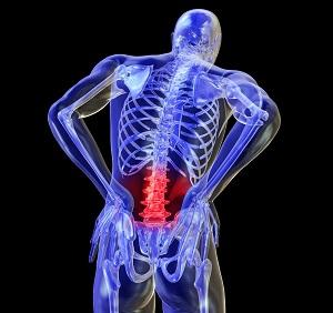 back-pain-backache