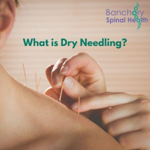 What-is-Dry-Needling-